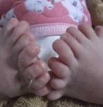 صورة الطفل والاصابع الكثيرة